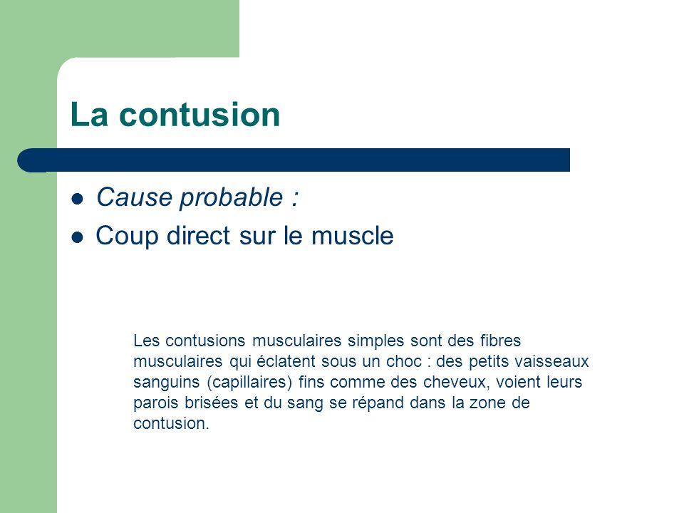 La contusion Cause probable : Coup direct sur le muscle Les contusions musculaires simples sont des fibres musculaires qui éclatent sous un choc : des
