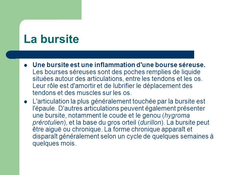 Une bursite est une inflammation d'une bourse séreuse. Les bourses séreuses sont des poches remplies de liquide situées autour des articulations, entr