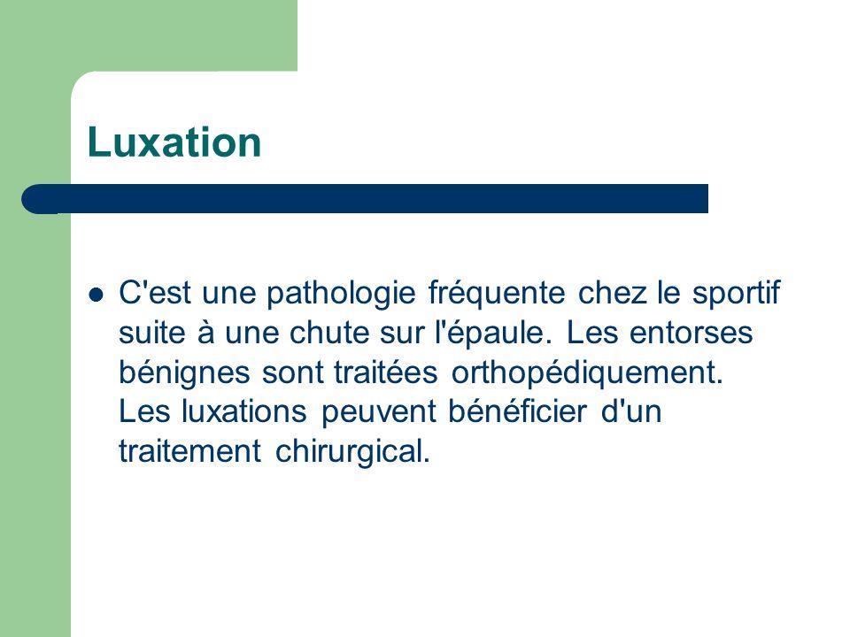 Luxation C'est une pathologie fréquente chez le sportif suite à une chute sur l'épaule. Les entorses bénignes sont traitées orthopédiquement. Les luxa