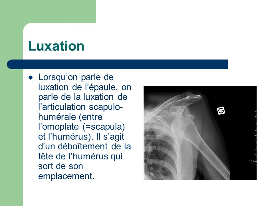 Luxation Lorsquon parle de luxation de lépaule, on parle de la luxation de larticulation scapulo- humérale (entre lomoplate (=scapula) et lhumérus). I