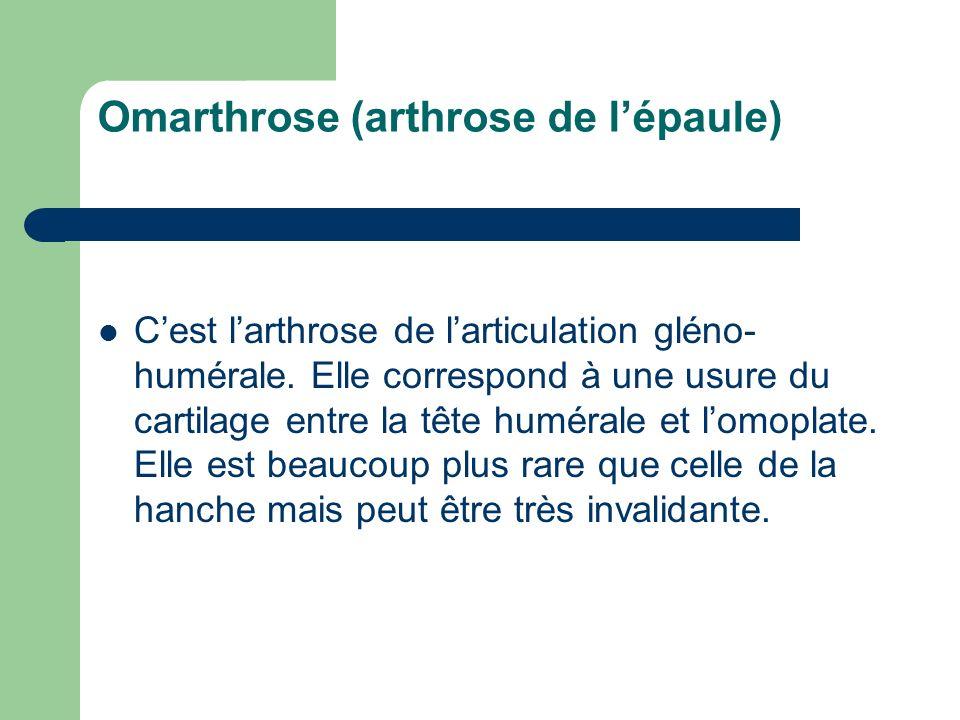 Omarthrose (arthrose de lépaule) Cest larthrose de larticulation gléno- humérale. Elle correspond à une usure du cartilage entre la tête humérale et l