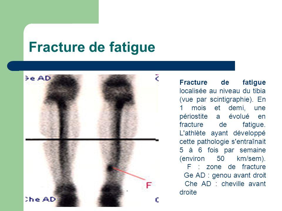 Fracture de fatigue Fracture de fatigue localisée au niveau du tibia (vue par scintigraphie). En 1 mois et demi, une périostite a évolué en fracture d