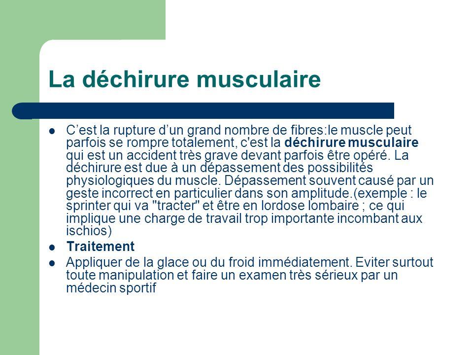 Cest la rupture dun grand nombre de fibres:le muscle peut parfois se rompre totalement, c'est la déchirure musculaire qui est un accident très grave d