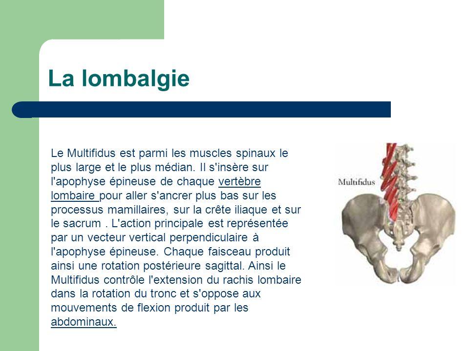 La lombalgie Le Multifidus est parmi les muscles spinaux le plus large et le plus médian. Il s'insère sur l'apophyse épineuse de chaque vertèbre lomba