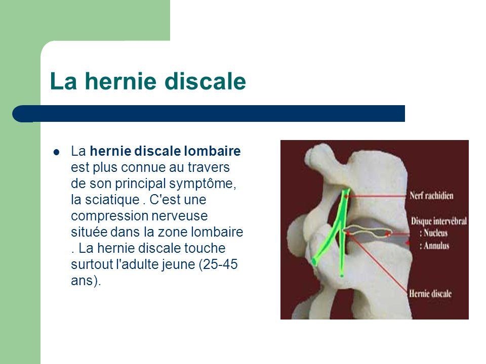 La hernie discale La hernie discale lombaire est plus connue au travers de son principal symptôme, la sciatique. C'est une compression nerveuse située