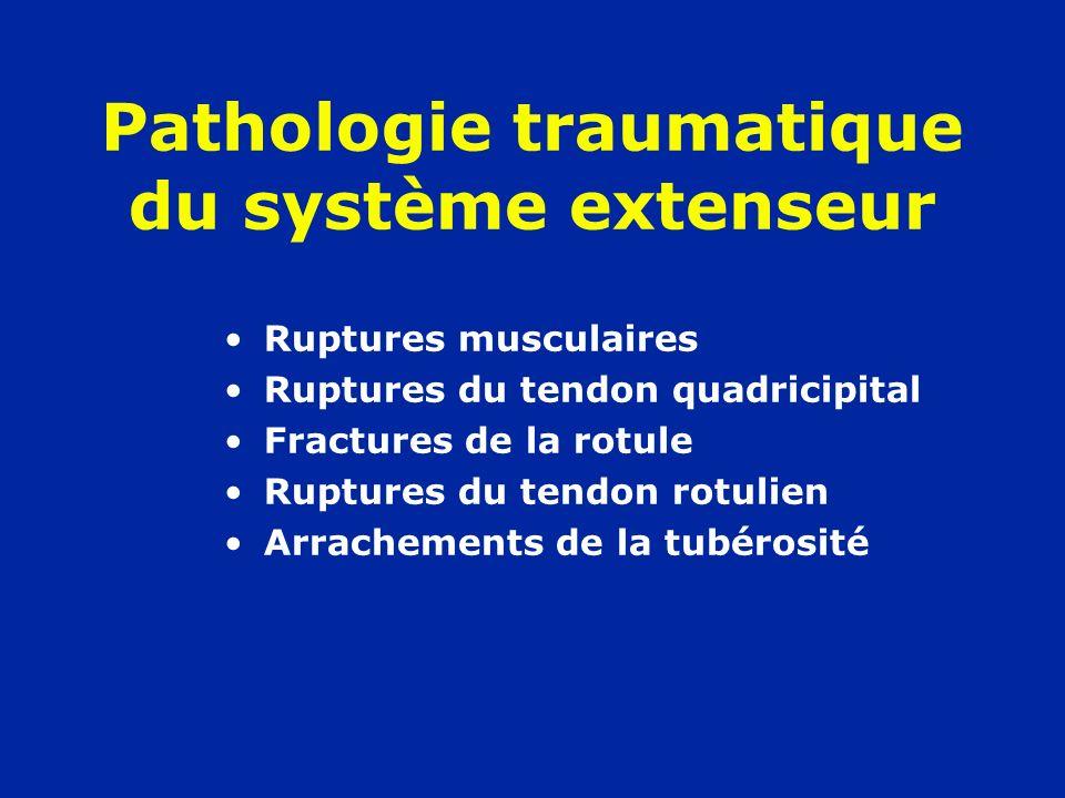 Pathologie traumatique du système extenseur Ruptures musculaires Ruptures du tendon quadricipital Fractures de la rotule Ruptures du tendon rotulien A