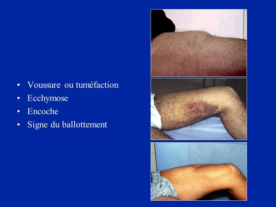 Voussure ou tuméfaction Ecchymose Encoche Signe du ballottement