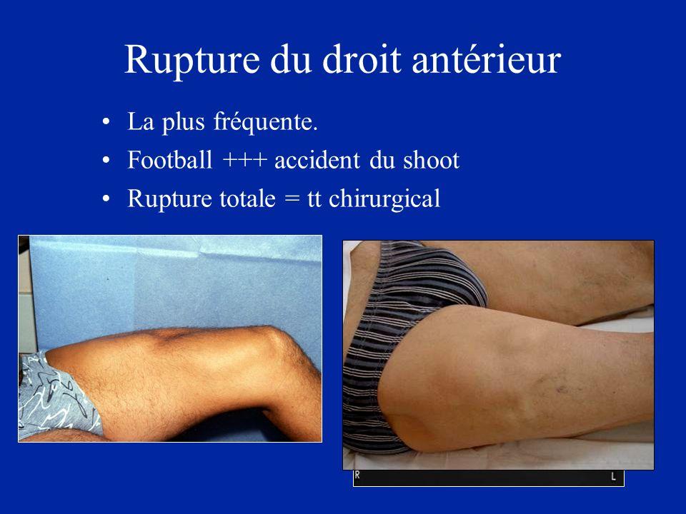 Rupture du droit antérieur La plus fréquente. Football +++ accident du shoot Rupture totale = tt chirurgical