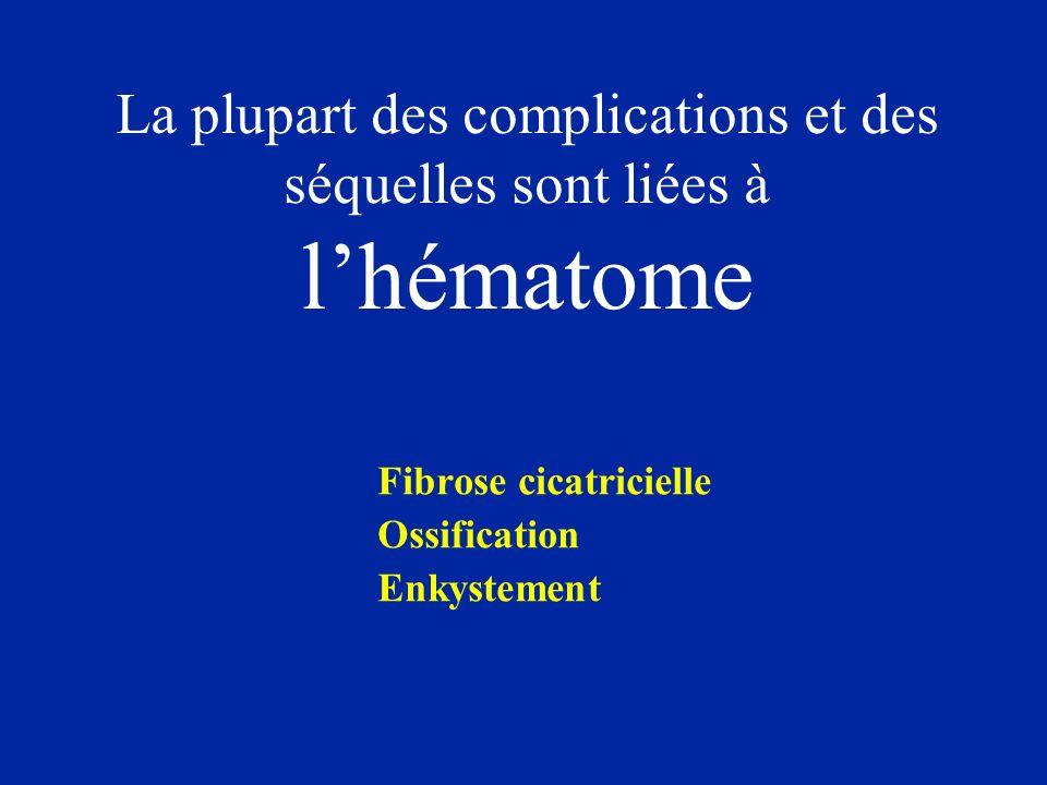 La plupart des complications et des séquelles sont liées à lhématome Fibrose cicatricielle Ossification Enkystement