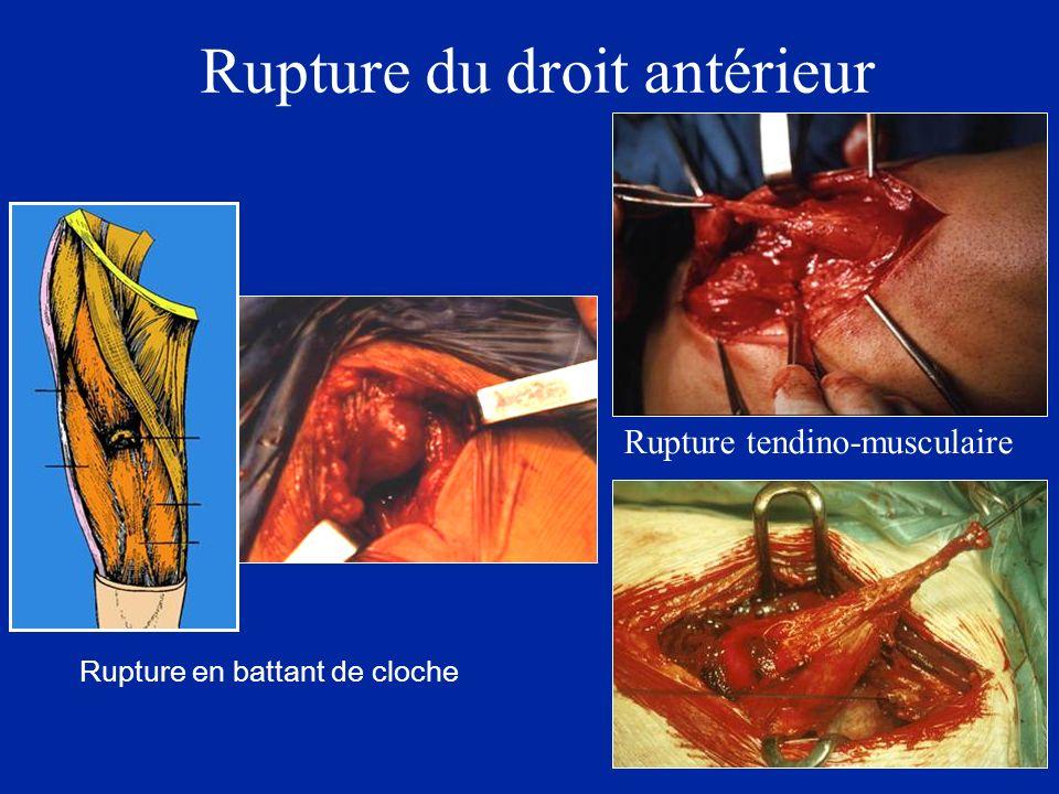 Rupture du droit antérieur Rupture en battant de cloche Rupture tendino-musculaire