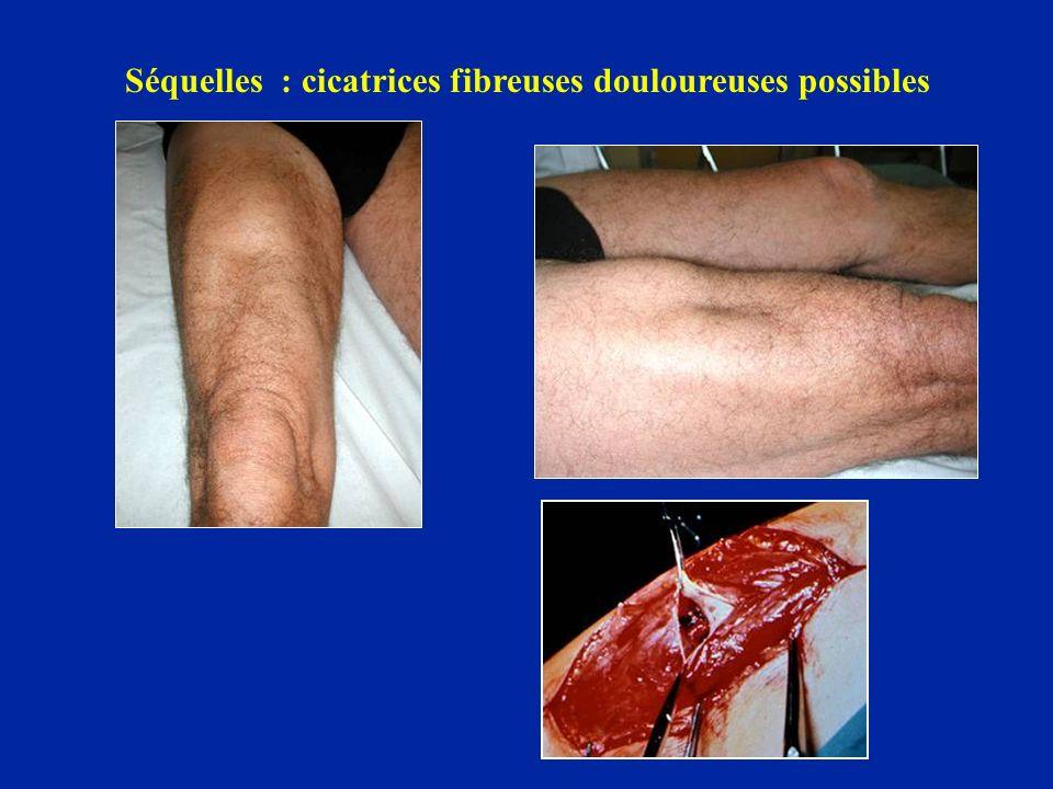 Séquelles : cicatrices fibreuses douloureuses possibles