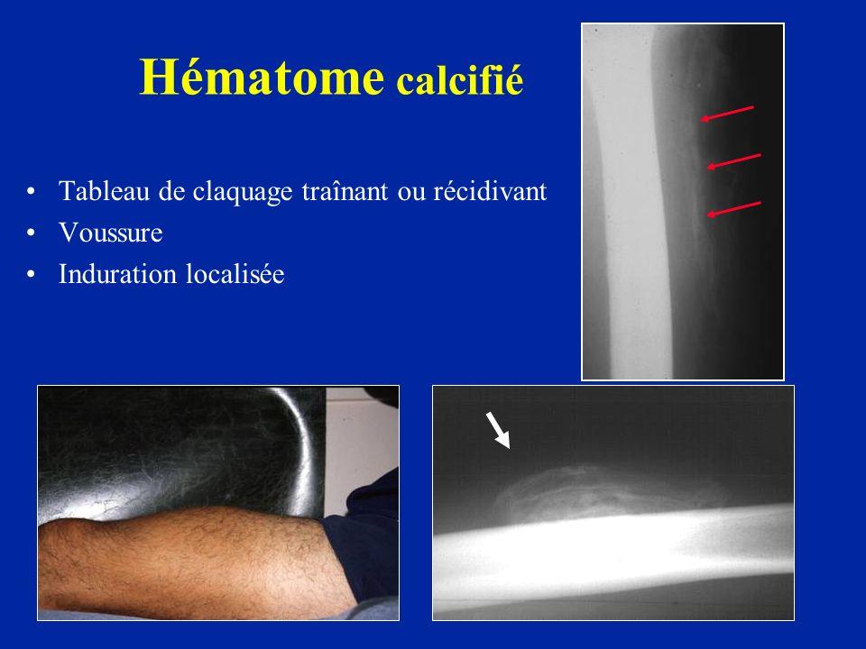 Tableau de claquage traînant ou récidivant Voussure Induration localisée Hématome calcifié