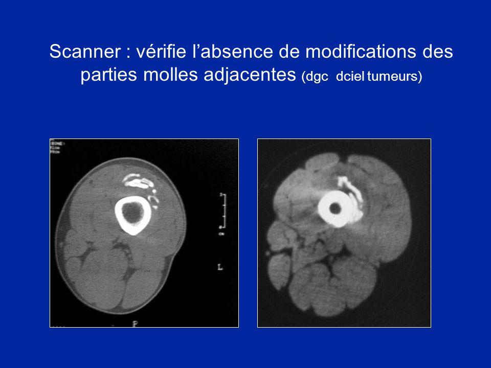 Scanner : vérifie labsence de modifications des parties molles adjacentes (dgc dciel tumeurs)