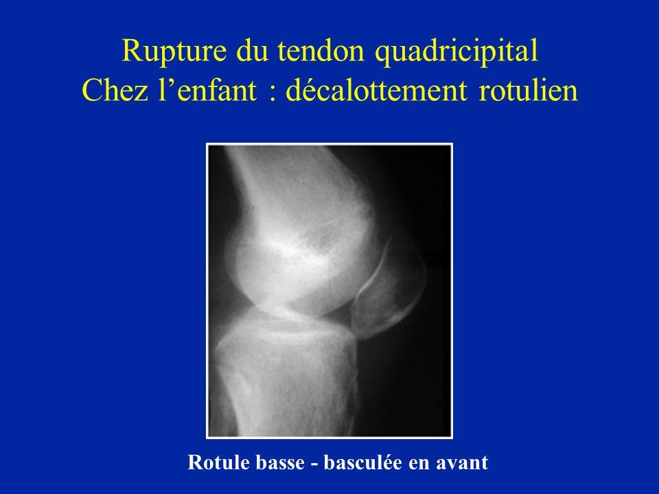 Rupture du tendon quadricipital Chez lenfant : décalottement rotulien Rotule basse - basculée en avant