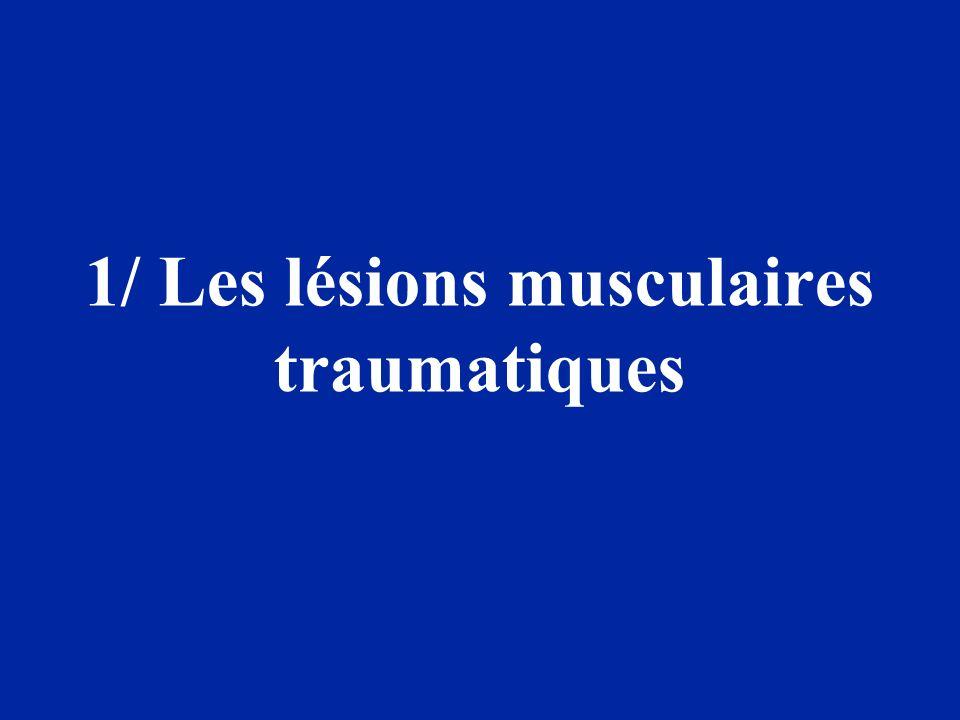 Lésions musculaires traumatiques –Contusions –Élongations –Déchirures ou claquages –Ruptures ou désinsertions (partielles-totales)