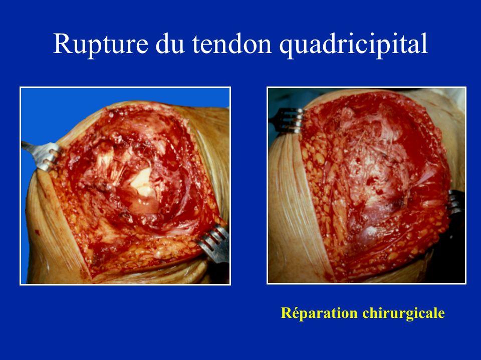 Rupture du tendon quadricipital Réparation chirurgicale