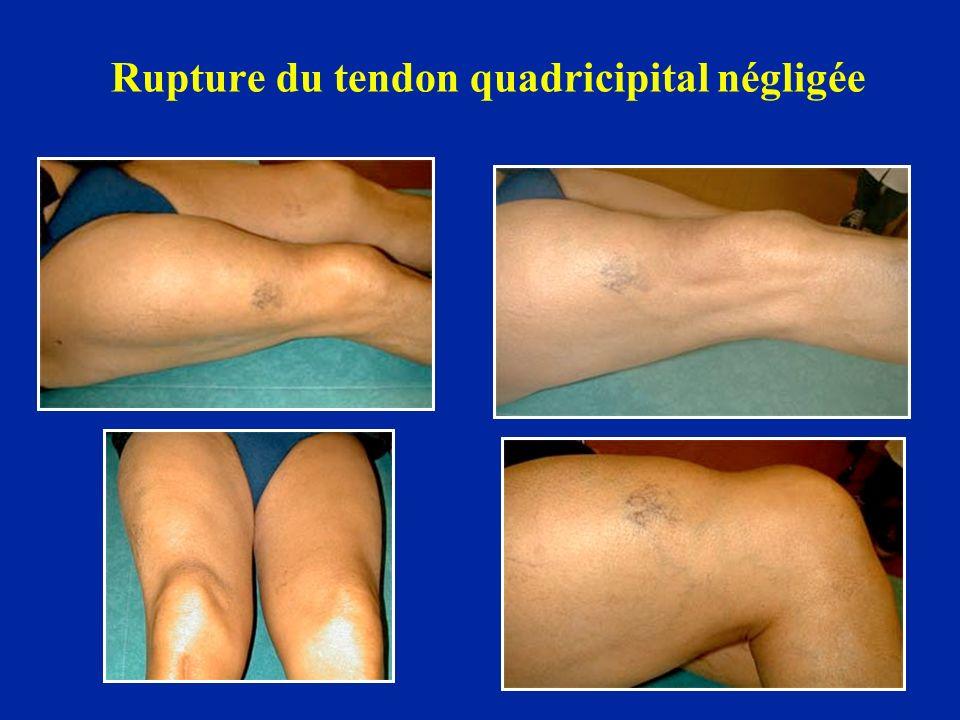 Rupture du tendon quadricipital négligée