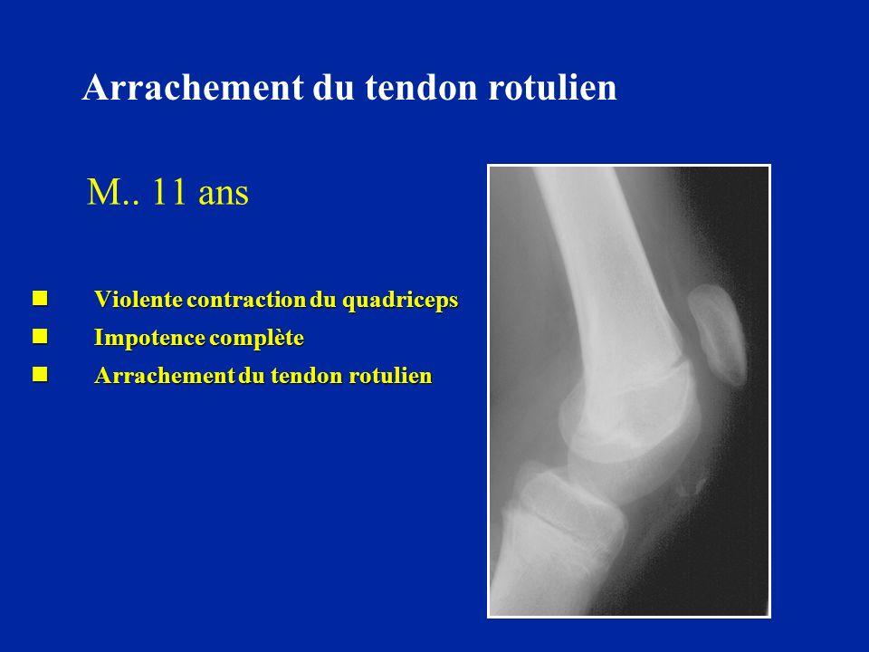 M.. 11 ans Violente contraction du quadriceps Violente contraction du quadriceps Impotence complète Impotence complète Arrachement du tendon rotulien