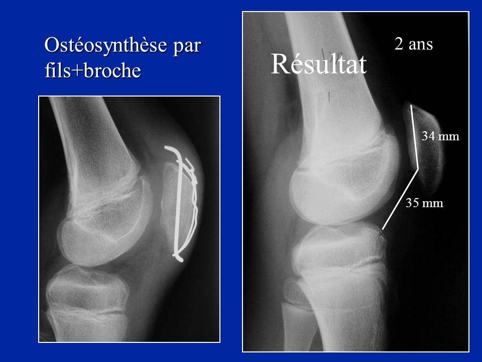 Résultat 2 ans 34 mm 35 mm Ostéosynthèse par fils+broche