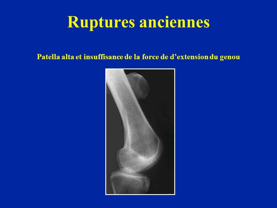Ruptures anciennes Patella alta et insuffisance de la force de dextension du genou