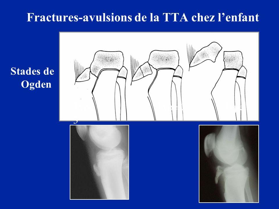Fractures-avulsions de la TTA chez lenfant Type 1 Type 2 Type 3 Stades de Ogden