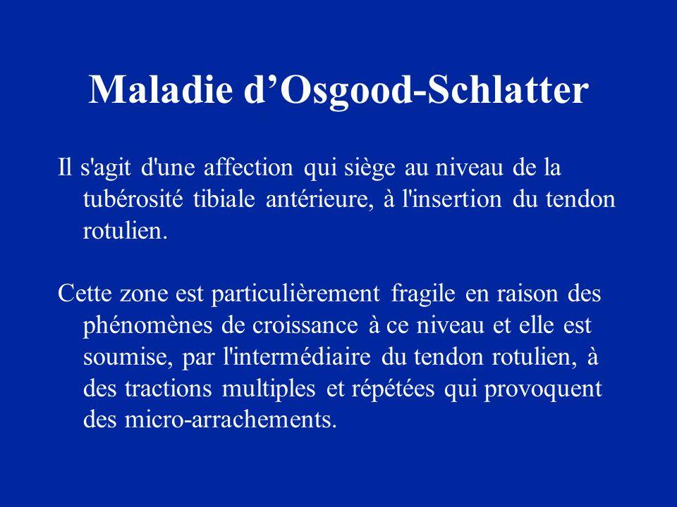 Maladie dOsgood-Schlatter Il s'agit d'une affection qui siège au niveau de la tubérosité tibiale antérieure, à l'insertion du tendon rotulien. Cette z