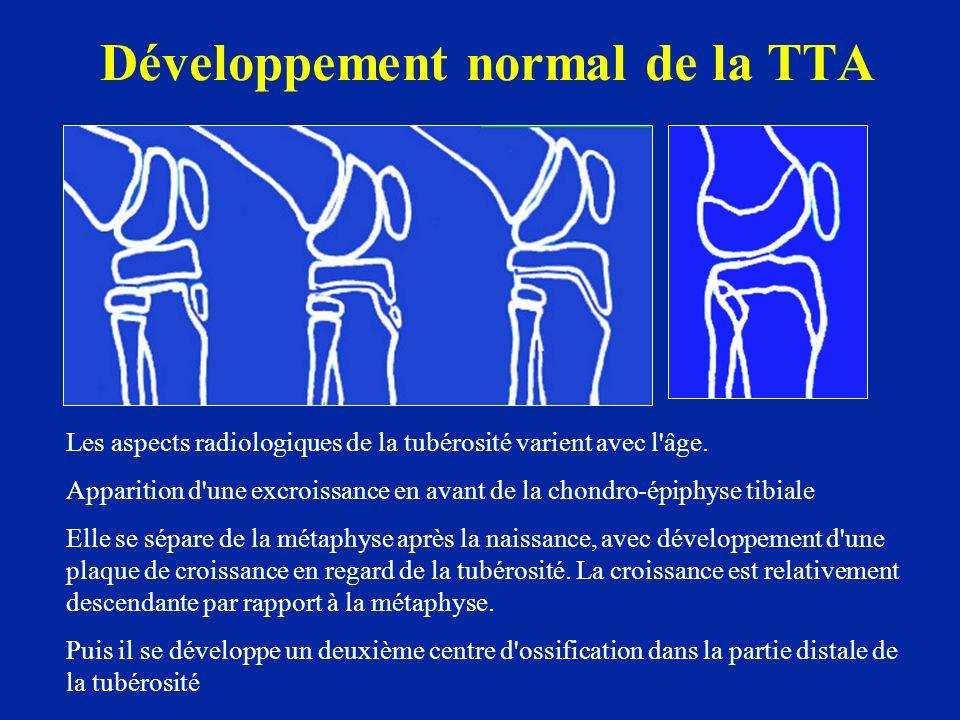 Développement normal de la TTA Les aspects radiologiques de la tubérosité varient avec l'âge. Apparition d'une excroissance en avant de la chondro-épi