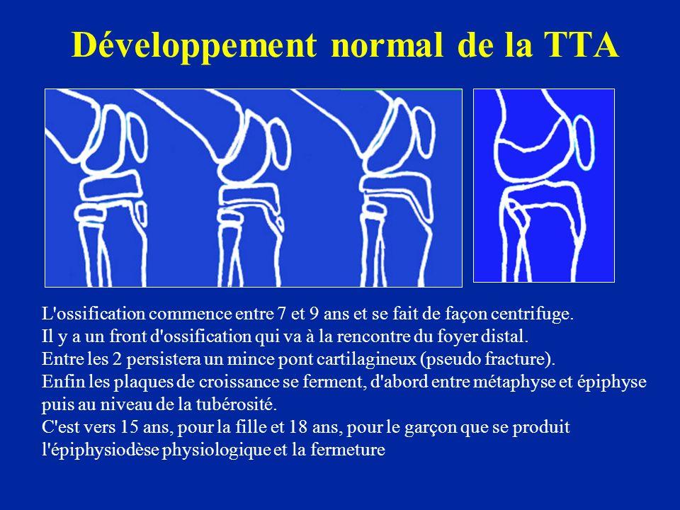 Développement normal de la TTA L'ossification commence entre 7 et 9 ans et se fait de façon centrifuge. Il y a un front d'ossification qui va à la ren