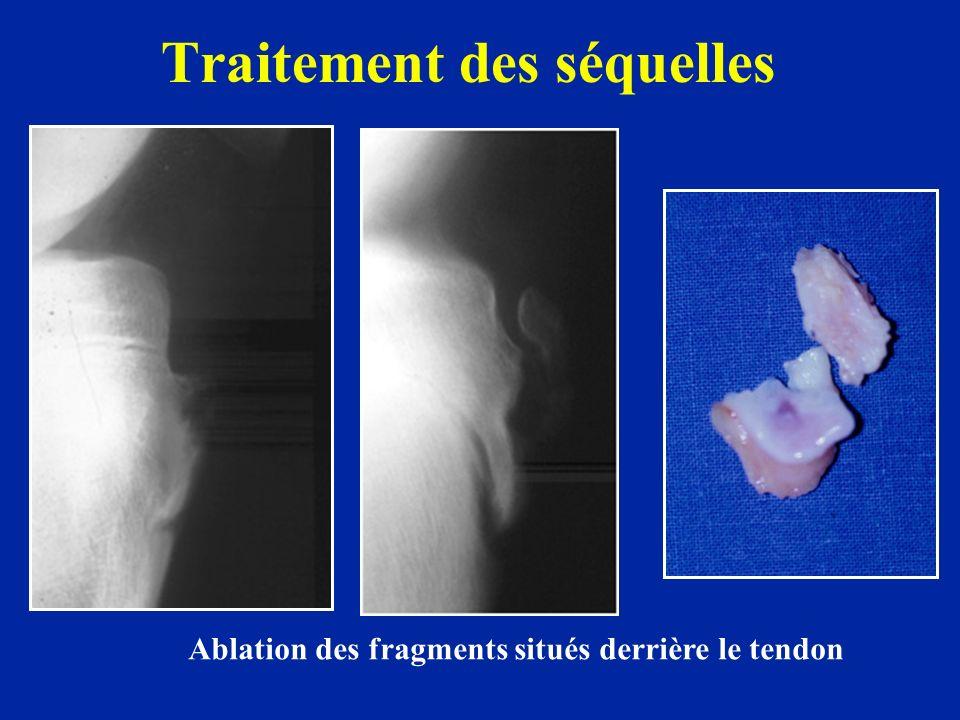 Traitement des séquelles Ablation des fragments situés derrière le tendon