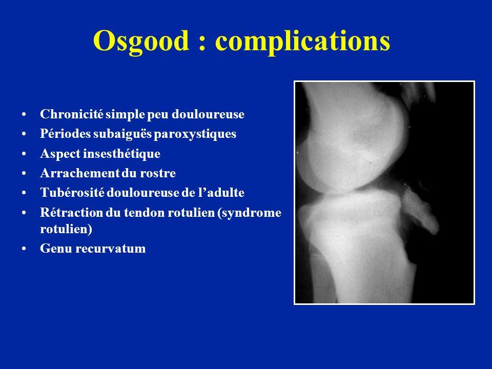 Osgood : complications Chronicité simple peu douloureuse Périodes subaiguës paroxystiques Aspect insesthétique Arrachement du rostre Tubérosité doulou