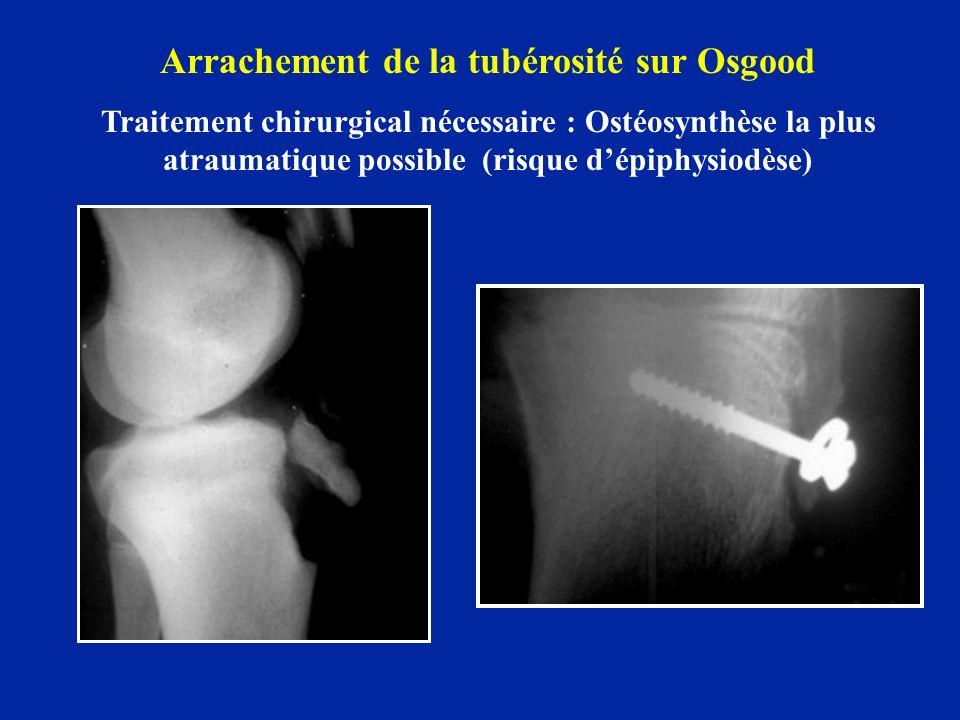 Arrachement de la tubérosité sur Osgood Traitement chirurgical nécessaire : Ostéosynthèse la plus atraumatique possible (risque dépiphysiodèse)