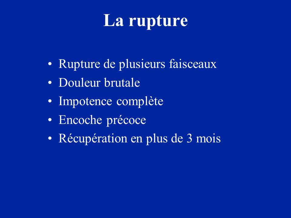 La rupture Rupture de plusieurs faisceaux Douleur brutale Impotence complète Encoche précoce Récupération en plus de 3 mois