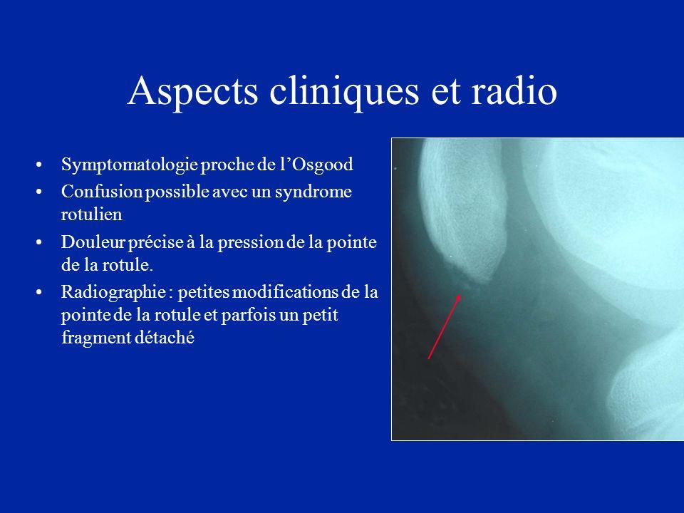 Aspects cliniques et radio Symptomatologie proche de lOsgood Confusion possible avec un syndrome rotulien Douleur précise à la pression de la pointe d