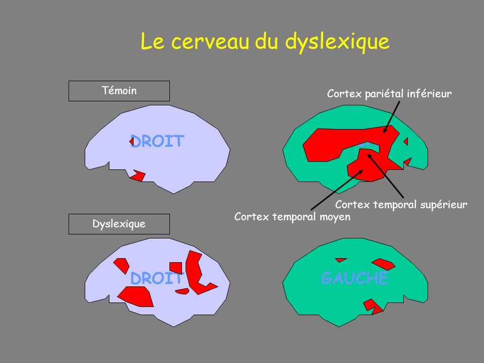 DROIT Le cerveau du dyslexique DROIT GAUCHE Témoin Dyslexique GAUCHE Cortex temporal moyen Cortex temporal supérieur Cortex pariétal inférieur