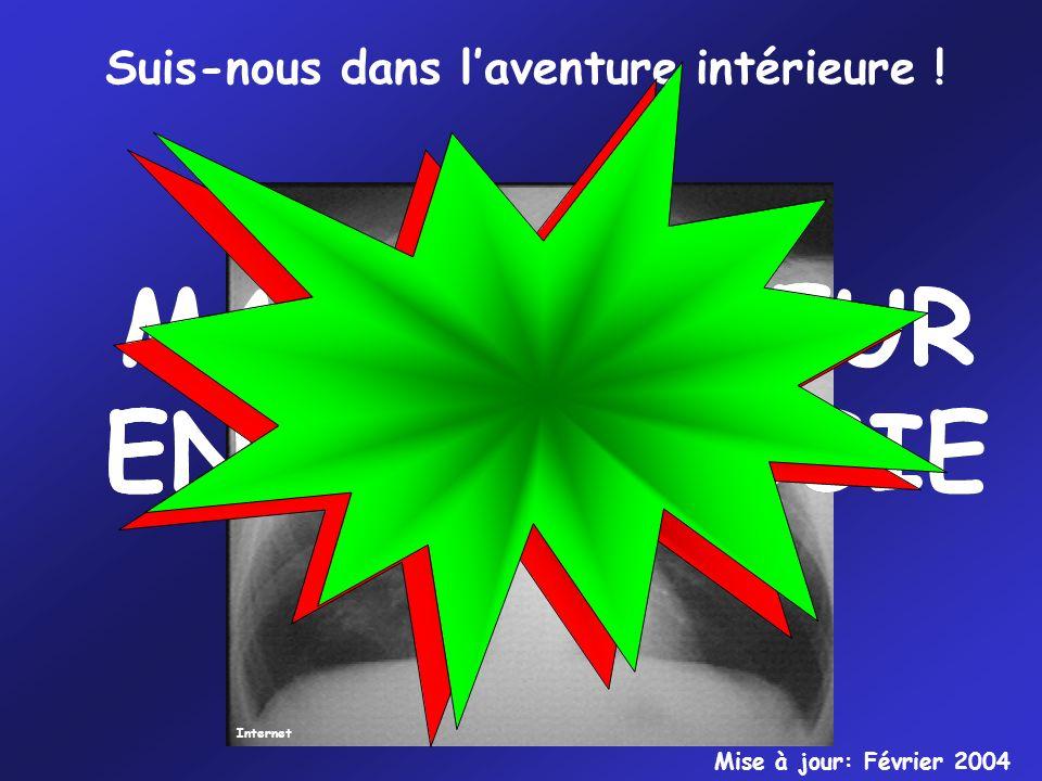 Internet Suis-nous dans laventure intérieure ! MANIPULATEUR EN RADIOLOGIE MANIPULATEUR EN RADIOLOGIE Mise à jour: Février 2004
