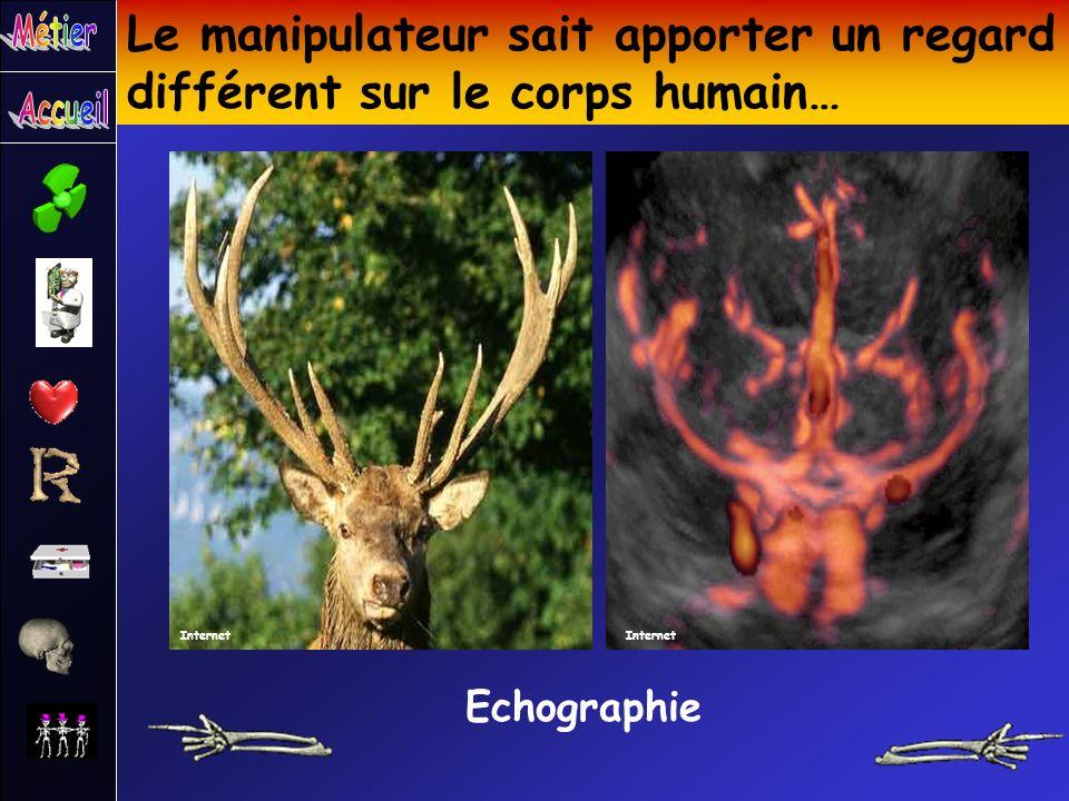 Le manipulateur sait apporter un regard différent sur le corps humain… Echographie Internet