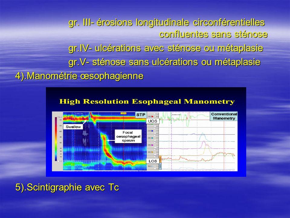 gr. III- érosions longitudinale circonférentielles confluentes sans sténose gr. III- érosions longitudinale circonférentielles confluentes sans sténos