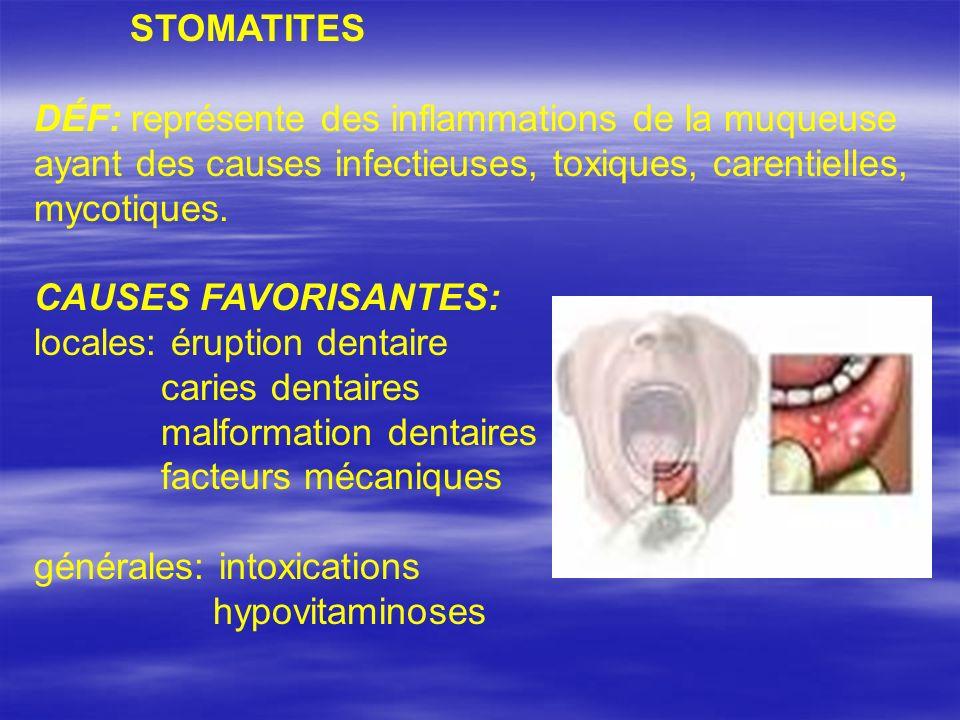 FORMES CLINIQUES: STOMATITE (à Candidas) ALBICANS agent étiologique – Candida albicans favorisantes: déficiences nutritionnelles perturbations de la flore locale acidité élevée muqueuse sèche évolution: 3 stades – érythème - points, évolution blanchâtre isolée - dépôts confluents avec le diam.-1-2 mm clinique: afébrile vomissements excréments modifiés diagnostic: aspect clinique – muguet traitement: local – bleu de méthylène 1% violet de gentiane1% glycérine borax 10% général – Diflucan