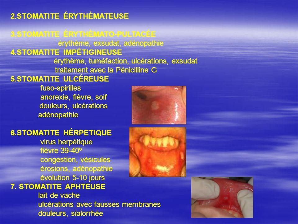 HÉPATITE CRONIQUE DÉF: inflammation chronique de la foie, à étiologie diverse, avec des manifestations cliniques, biologiques, histologiques à une durée de > 6 mois FORMES CLINICO-BIOLOGIQUES: 1.
