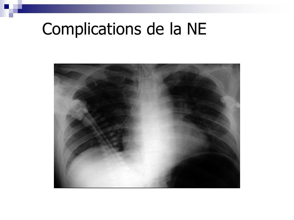 Complications de la NE