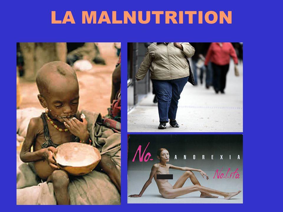 La malnutrition La malnutrition désigne un état pathologique causé par la déficience ou l excès dun ou plusieurs nutriments.