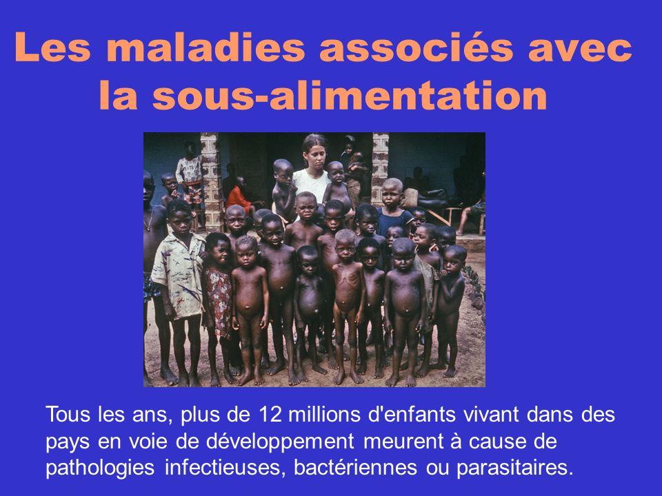 Les maladies associés avec la sous-alimentation Tous les ans, plus de 12 millions d'enfants vivant dans des pays en voie de développement meurent à ca