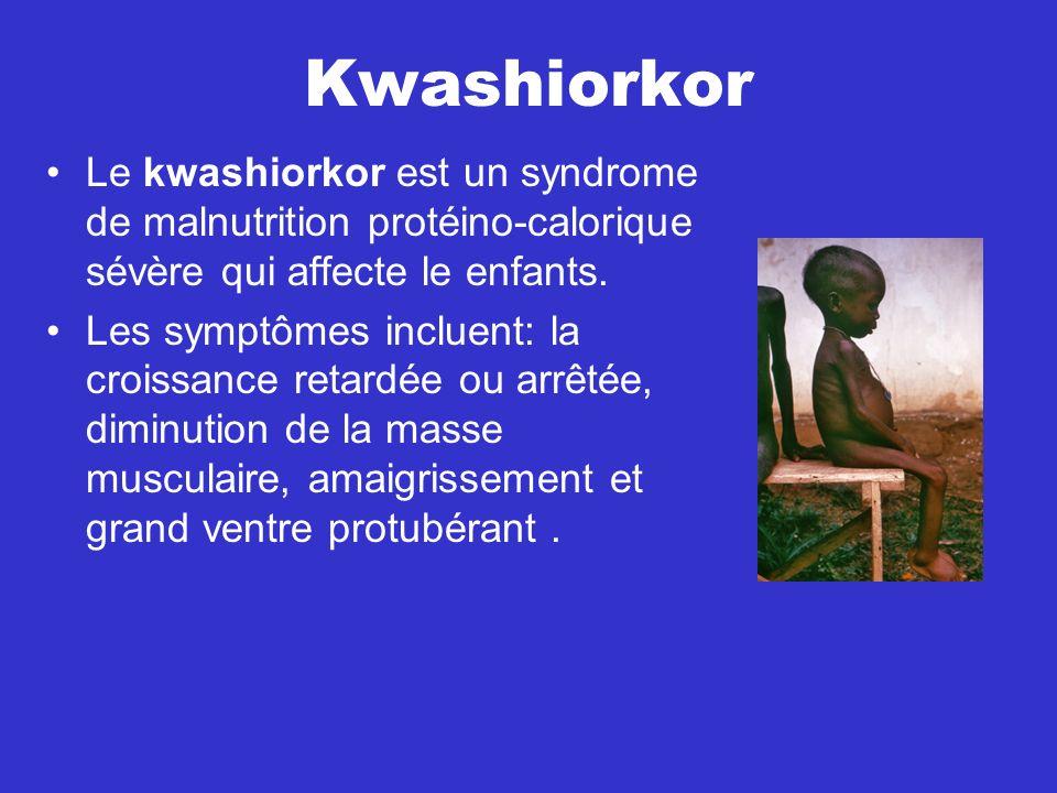 Kwashiorkor Le kwashiorkor est un syndrome de malnutrition protéino-calorique sévère qui affecte le enfants. Les symptômes incluent: la croissance ret