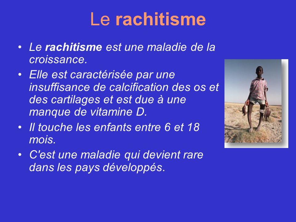 Le rachitisme Le rachitisme est une maladie de la croissance. Elle est caractérisée par une insuffisance de calcification des os et des cartilages et