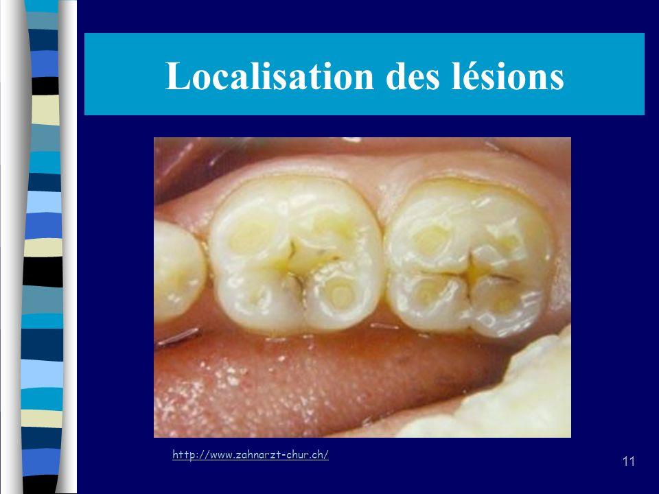 11 Localisation des lésions http://www.zahnarzt-chur.ch/