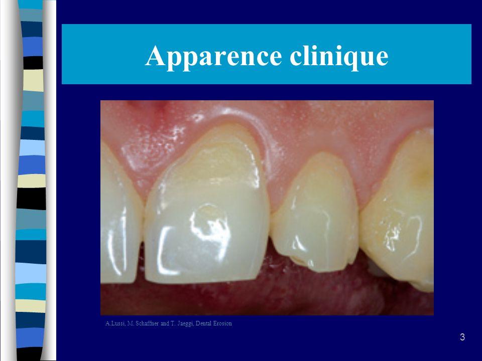 44 Bibliographie 5.G.J. Mount & W.R. Hume, Préservation et restauration de la structure dentaire.