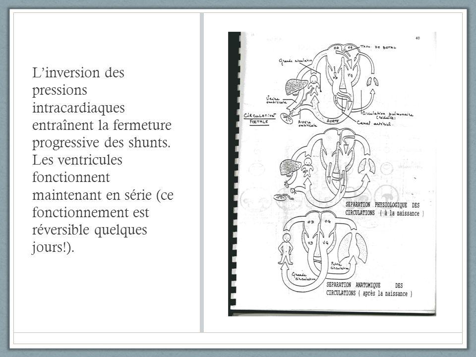 Linversion des pressions intracardiaques entraînent la fermeture progressive des shunts. Les ventricules fonctionnent maintenant en série (ce fonction