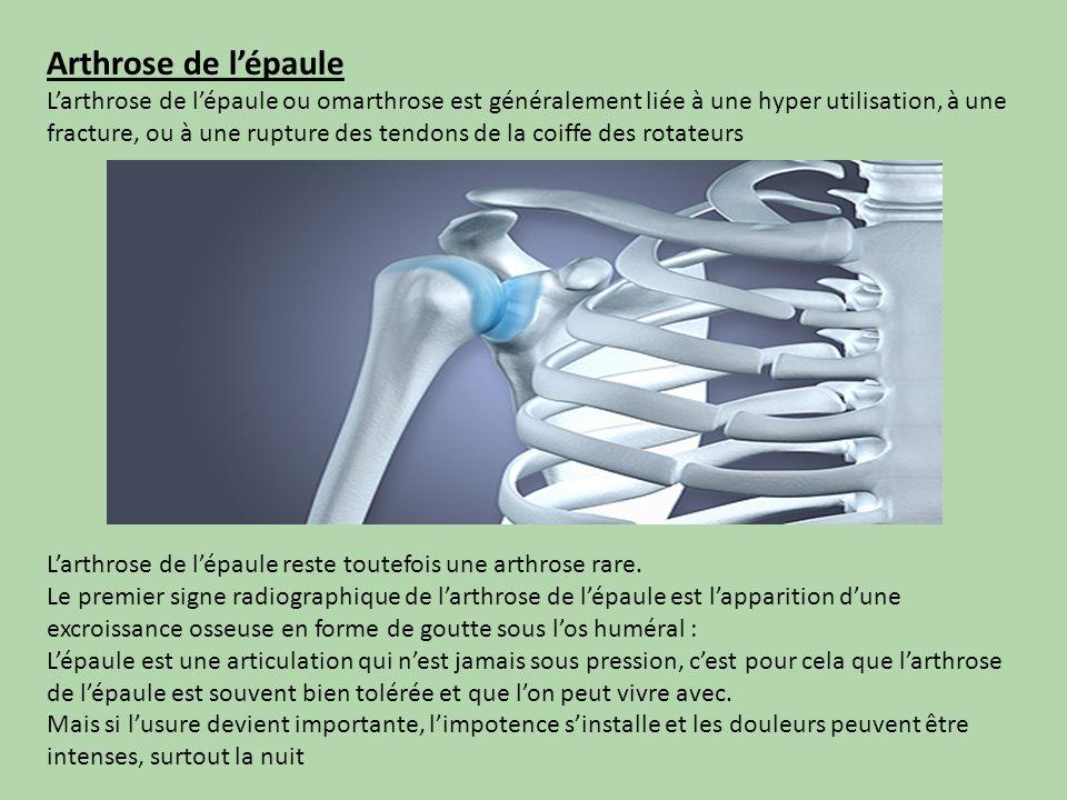 Arthrose de lépaule Larthrose de lépaule ou omarthrose est généralement liée à une hyper utilisation, à une fracture, ou à une rupture des tendons de
