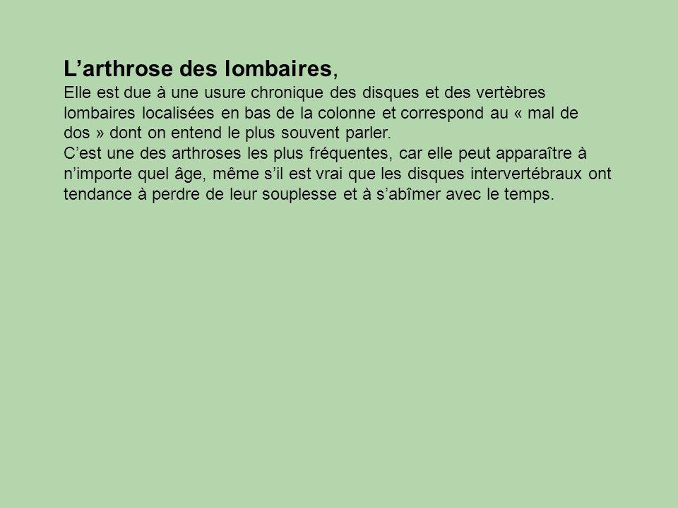 Larthrose des lombaires, Elle est due à une usure chronique des disques et des vertèbres lombaires localisées en bas de la colonne et correspond au «