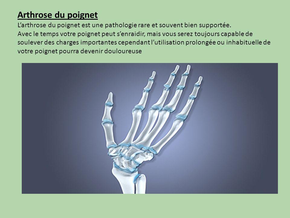 Arthrose du poignet Larthrose du poignet est une pathologie rare et souvent bien supportée. Avec le temps votre poignet peut senraidir, mais vous sere